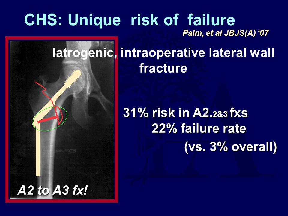 Iatrogenic, intraoperative lateral wall fracture