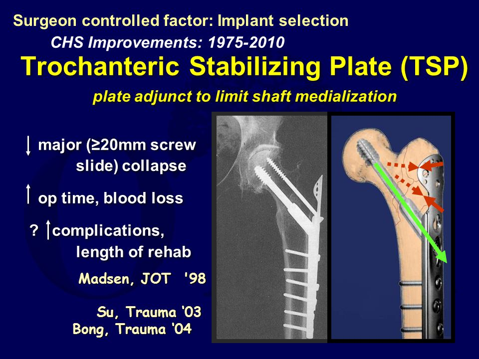 Surgeon controlled factor: Implant selection
