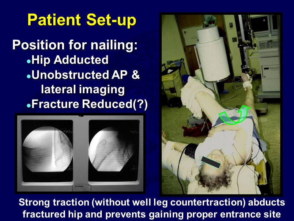 Patient Set-up Position for nailing: Hip Adducted