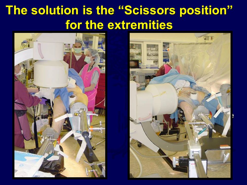The solution is the Scissors position for the extremities
