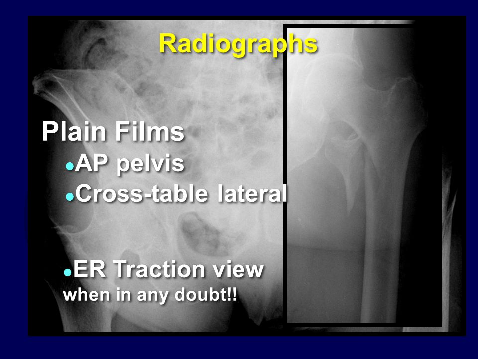 Plain Films Radiographs AP pelvis Cross-table lateral