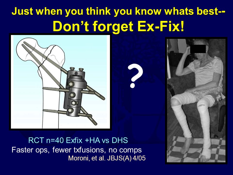 Just when you think you know whats best-- Don't forget Ex-Fix!