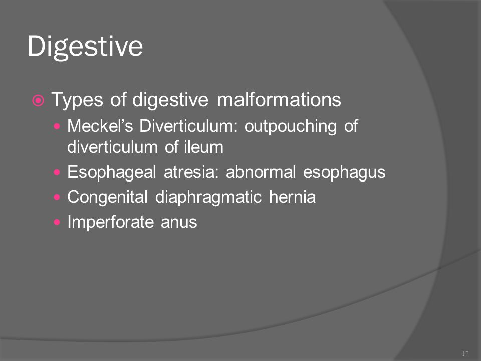 Digestive Types of digestive malformations