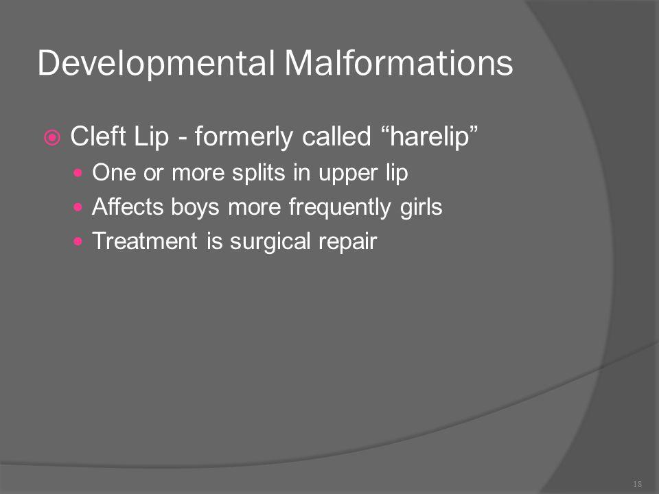 Developmental Malformations