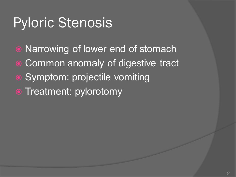 Pyloric Stenosis Narrowing of lower end of stomach