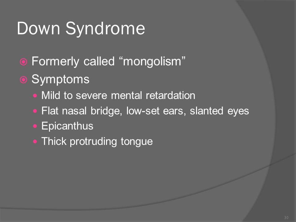 Down Syndrome Formerly called mongolism Symptoms