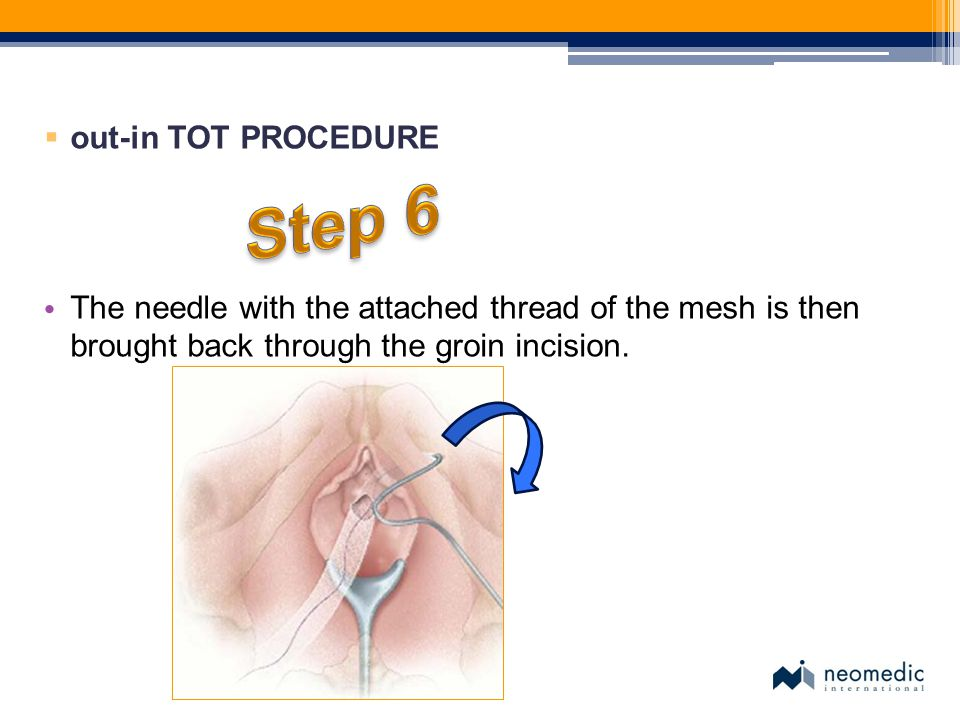 Step 6 out-in TOT PROCEDURE