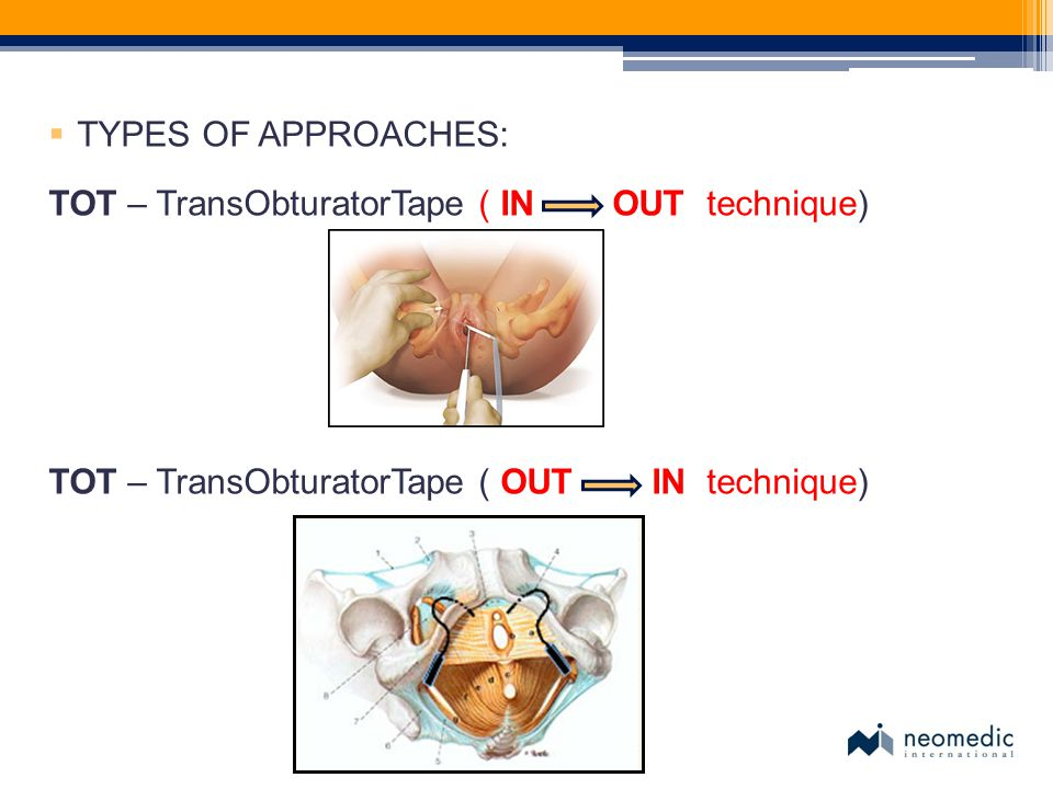 TYPES OF APPROACHES: TOT – TransObturatorTape ( IN OUT technique) TOT – TransObturatorTape ( OUT IN technique)