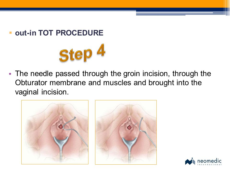 Step 4 out-in TOT PROCEDURE