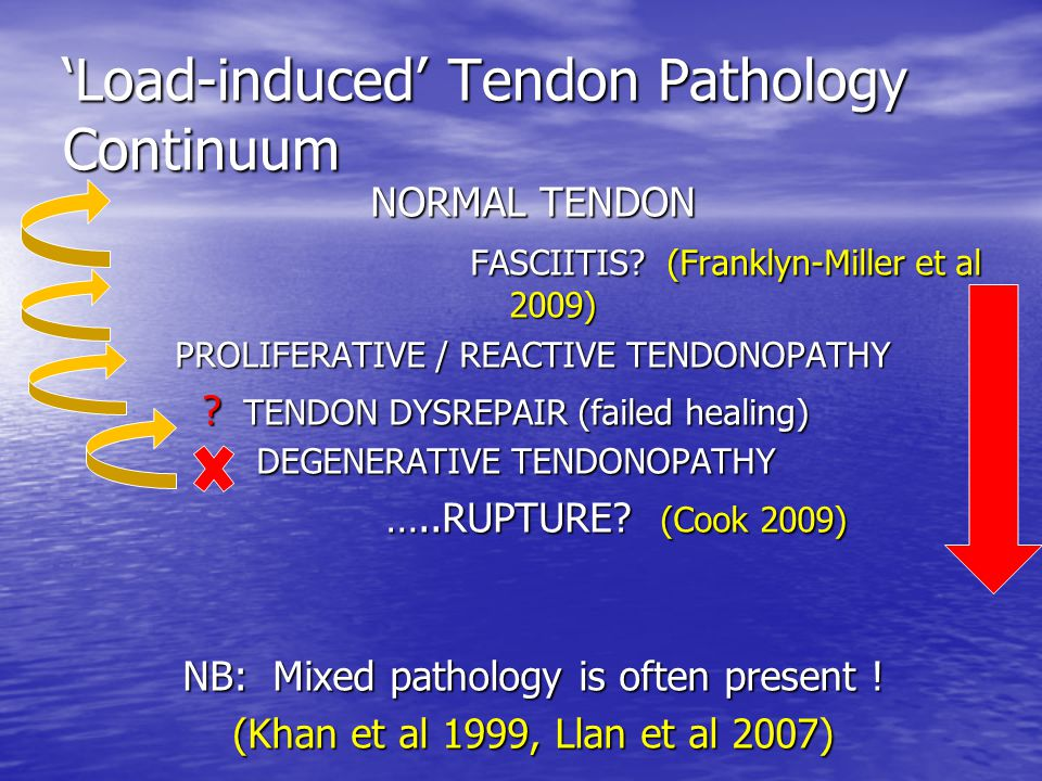 'Load-induced' Tendon Pathology Continuum