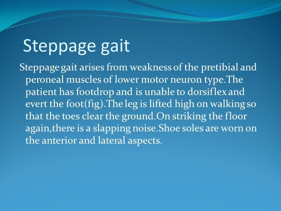 Steppage gait