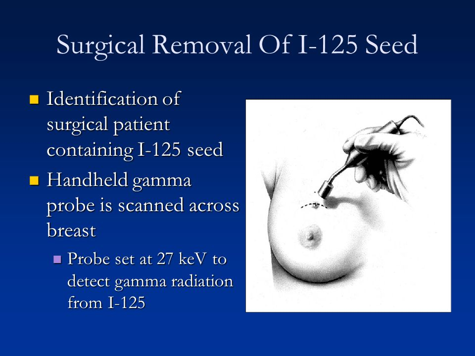 Surgical Removal Of I-125 Seed