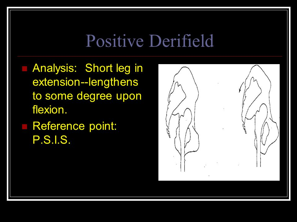 Positive Derifield Analysis: Short leg in extension--lengthens to some degree upon flexion.