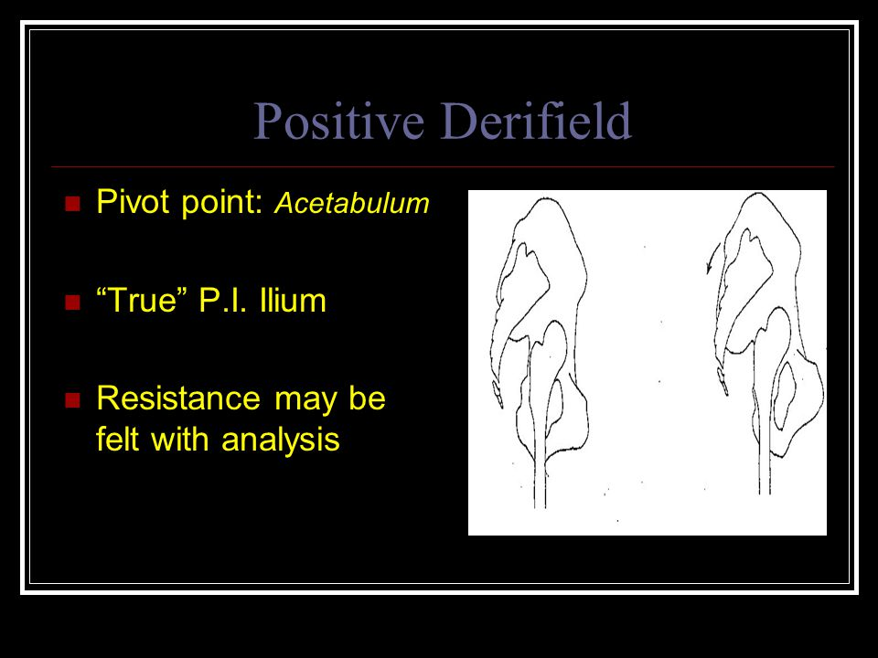Positive Derifield Pivot point: Acetabulum True P.I. Ilium