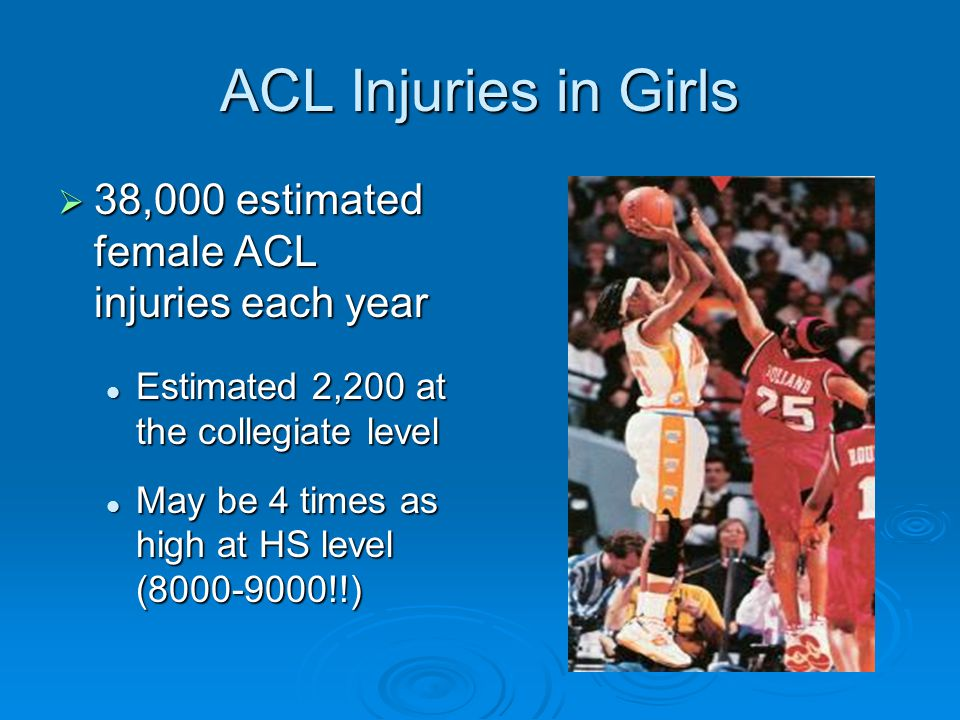 ACL Injuries in Girls 38,000 estimated female ACL injuries each year