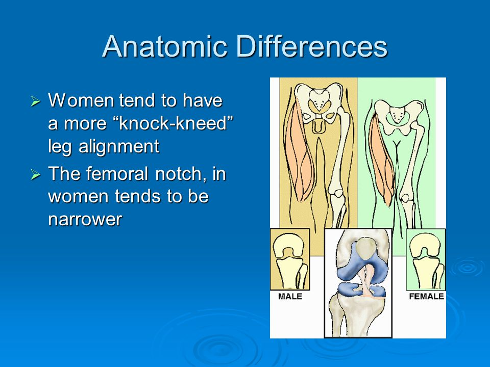 Anatomic Differences Women tend to have a more knock-kneed leg alignment.