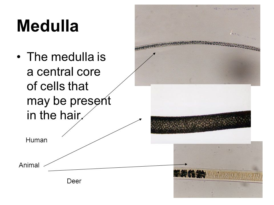 Medulla The medulla is a central core of cells that may be present in the hair. Human Animal Deer