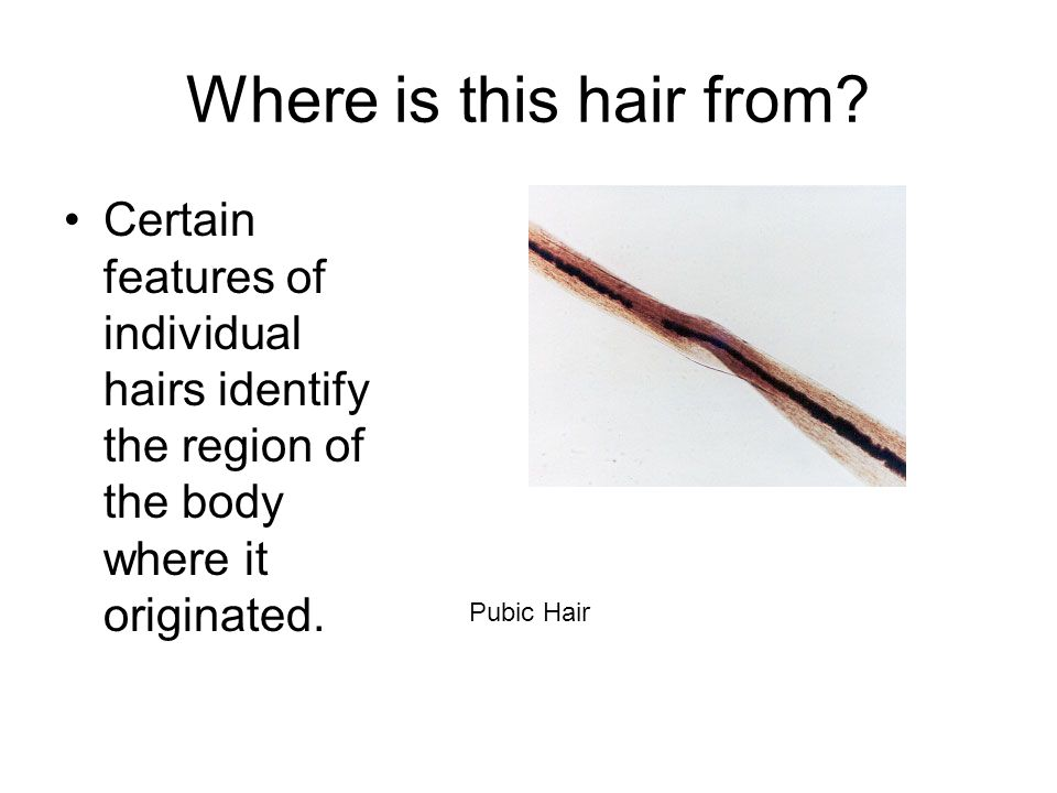 Where is this hair from Certain features of individual hairs identify the region of the body where it originated.