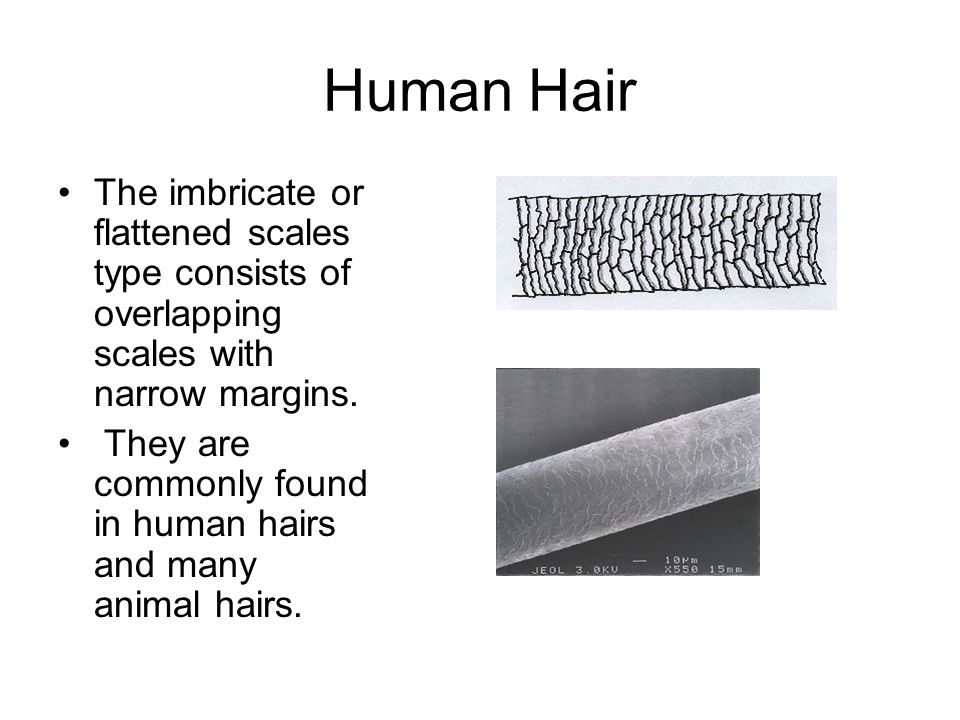Human Hair The imbricate or flattened scales type consists of overlapping scales with narrow margins.