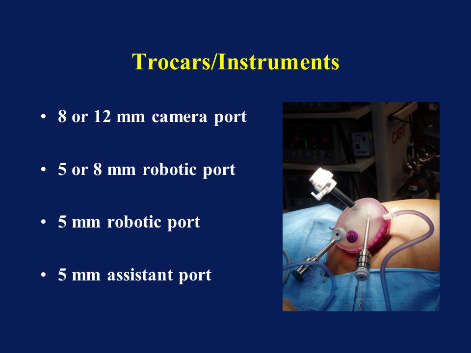 Trocars/Instruments 8 or 12 mm camera port 5 or 8 mm robotic port