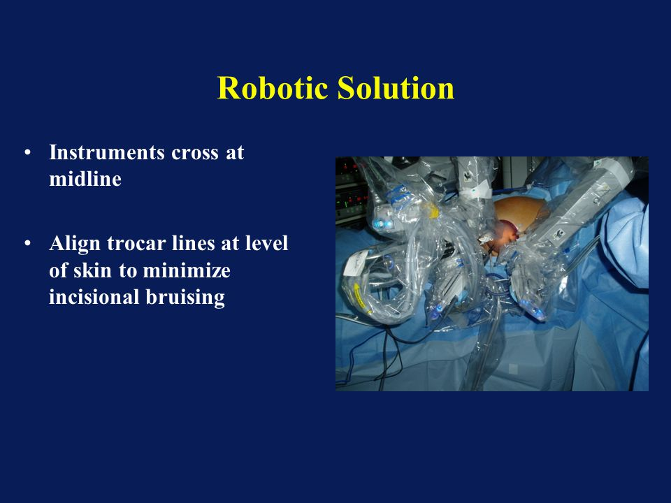 Robotic Solution Instruments cross at midline