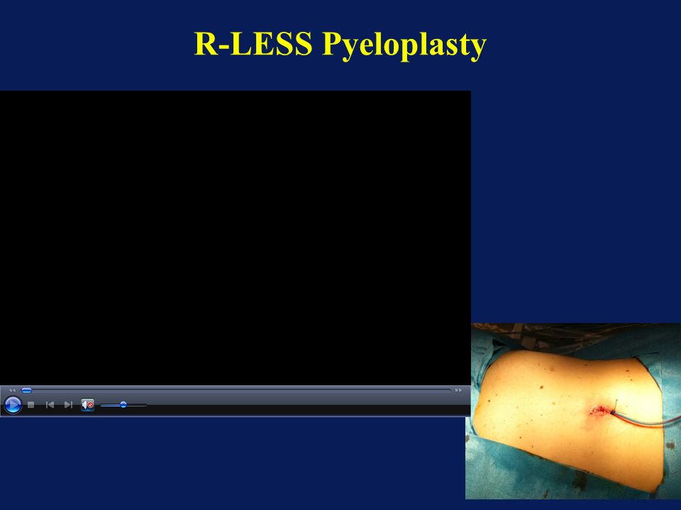 R-LESS Pyeloplasty