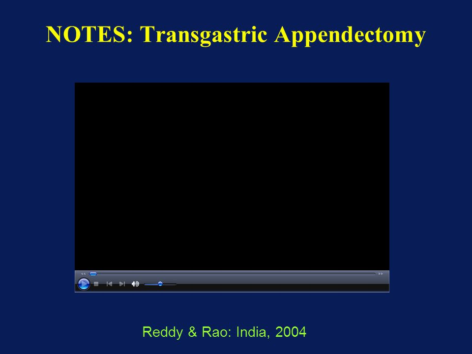 NOTES: Transgastric Appendectomy
