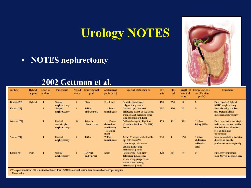 Urology NOTES NOTES nephrectomy 2002 Gettman et al.