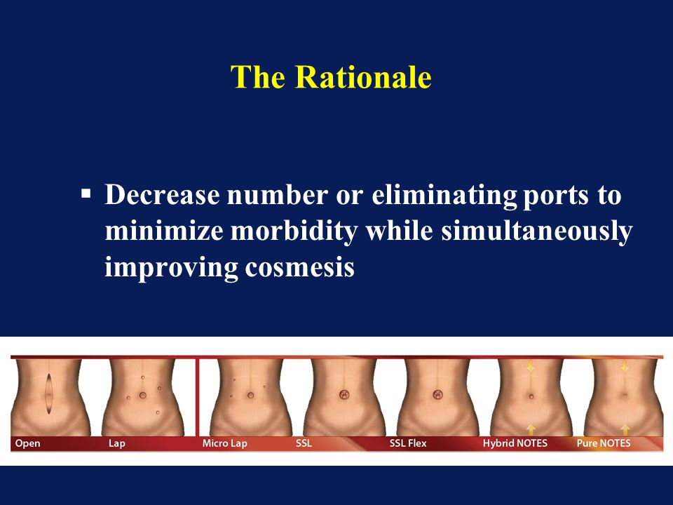 The Rationale Decrease number or eliminating ports to minimize morbidity while simultaneously improving cosmesis.