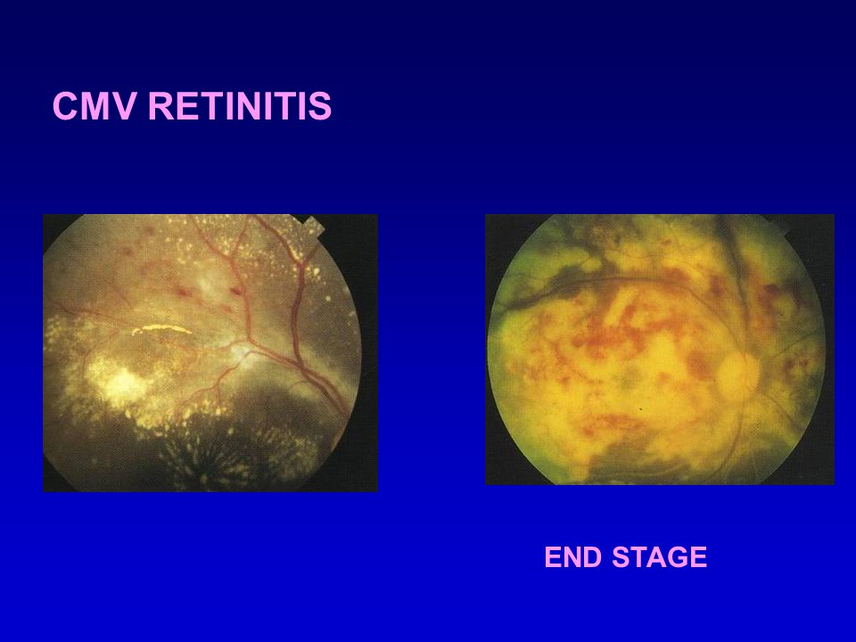CMV RETINITIS END STAGE