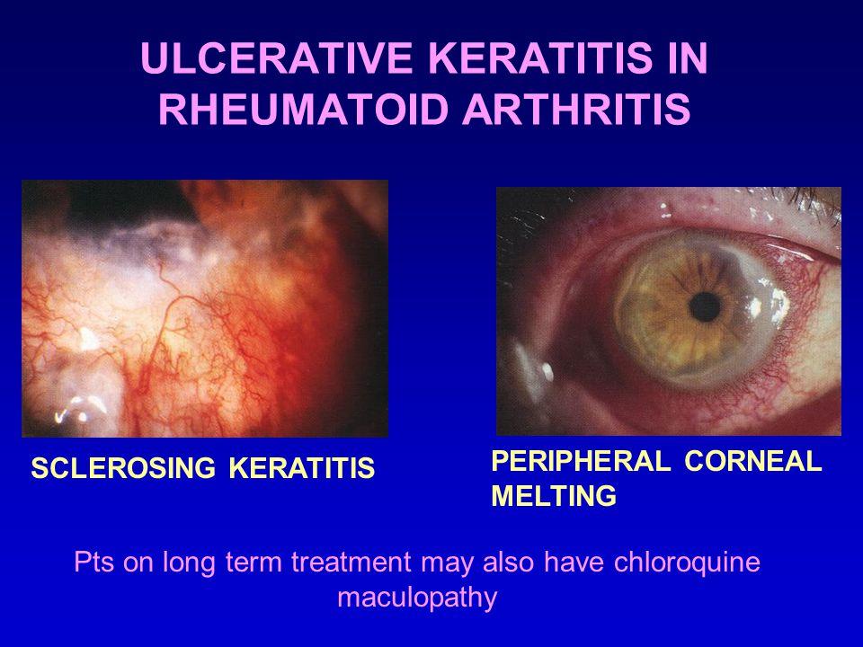 ULCERATIVE KERATITIS IN RHEUMATOID ARTHRITIS