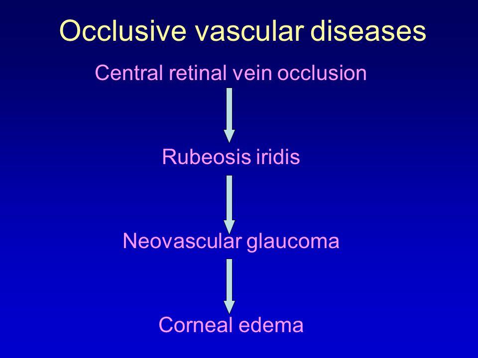 Occlusive vascular diseases