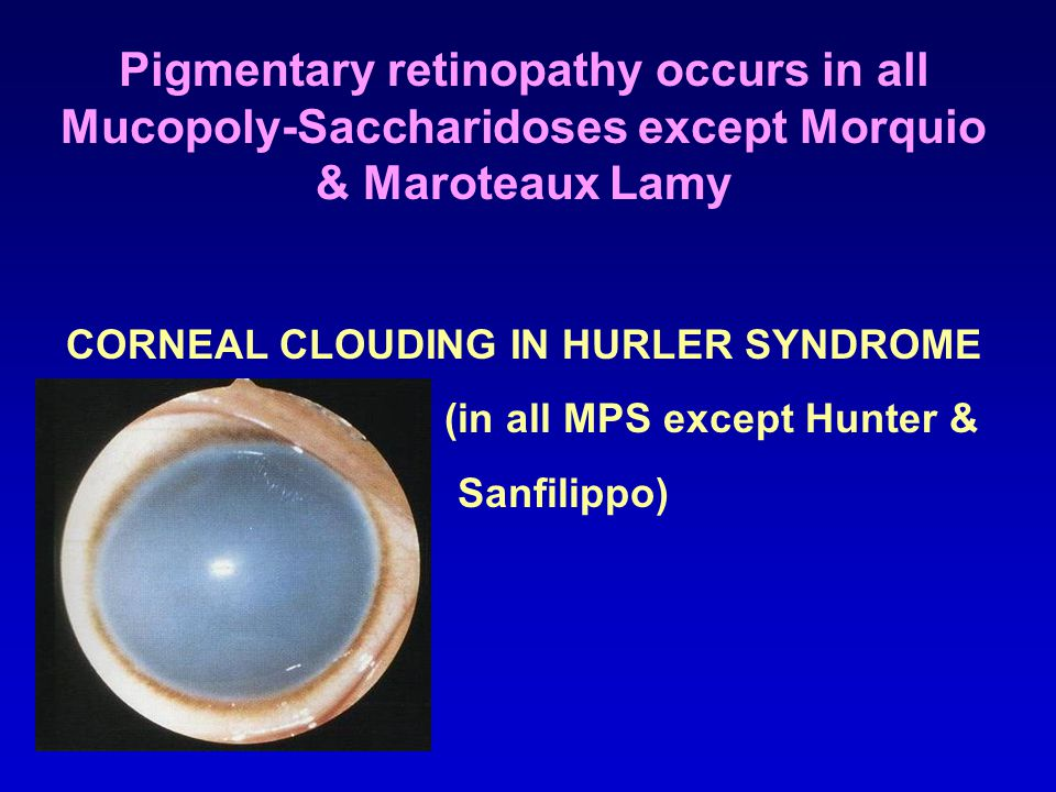CORNEAL CLOUDING IN HURLER SYNDROME (in all MPS except Hunter &