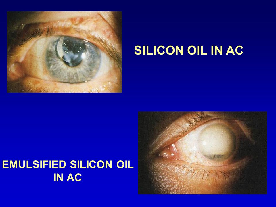 EMULSIFIED SILICON OIL IN AC