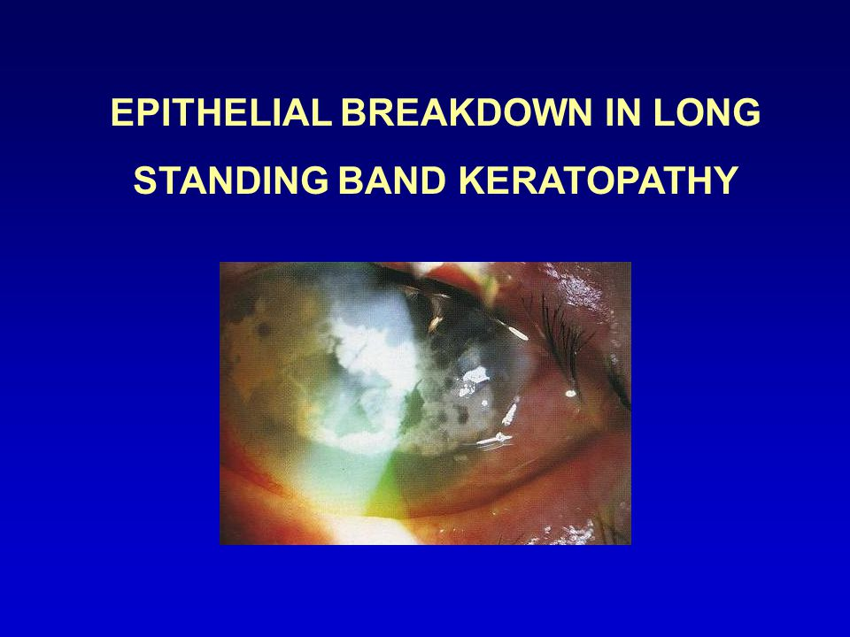 EPITHELIAL BREAKDOWN IN LONG STANDING BAND KERATOPATHY