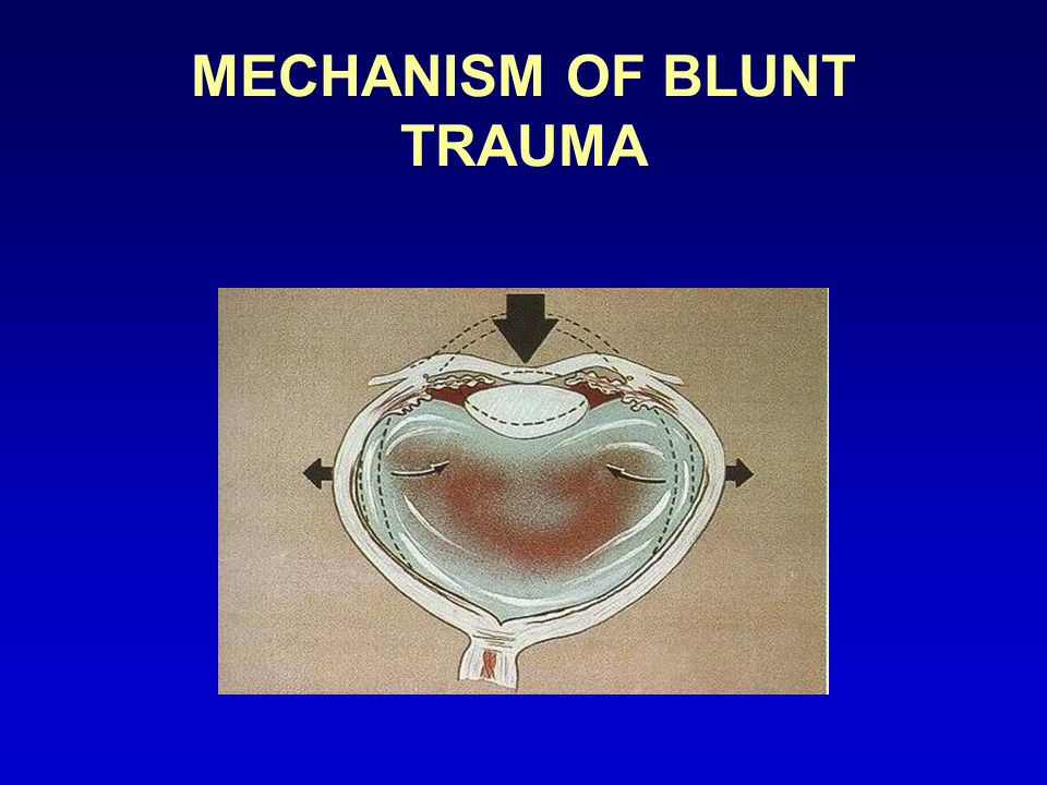 MECHANISM OF BLUNT TRAUMA