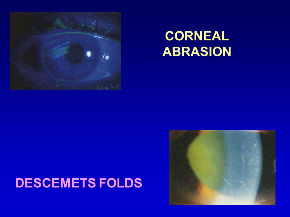 CORNEAL ABRASION DESCEMETS FOLDS