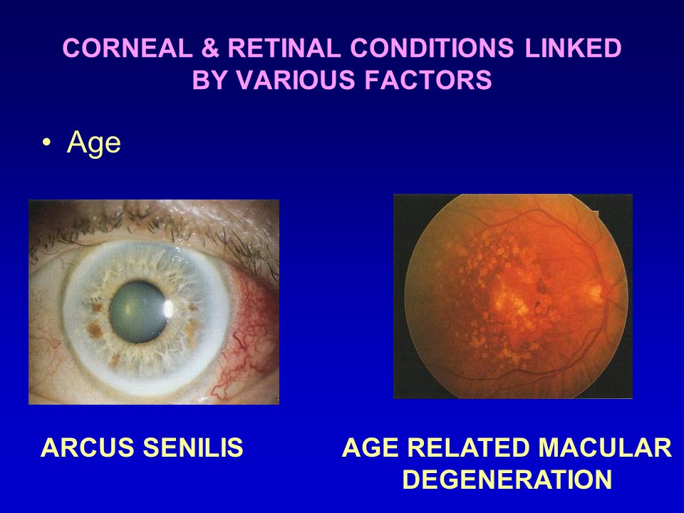CORNEAL & RETINAL CONDITIONS LINKED BY VARIOUS FACTORS