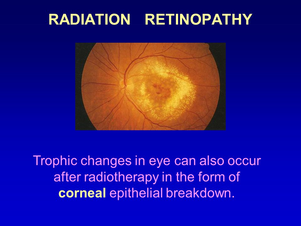 RADIATION RETINOPATHY