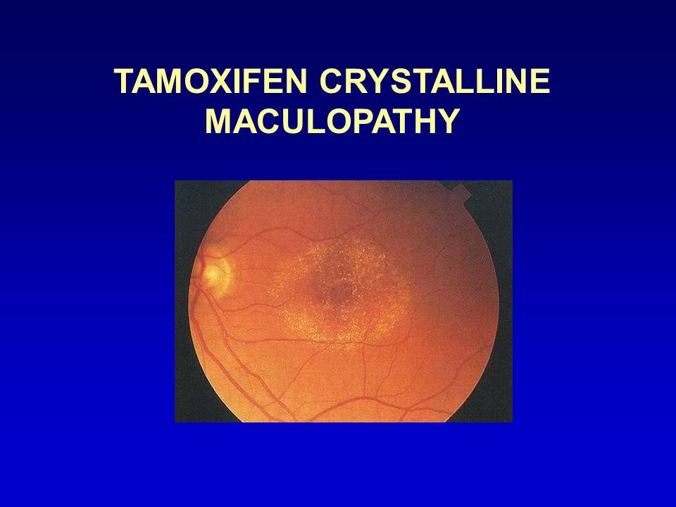 TAMOXIFEN CRYSTALLINE MACULOPATHY