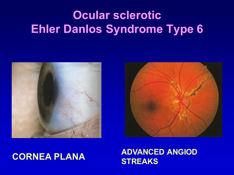 Ocular sclerotic Ehler Danlos Syndrome Type 6