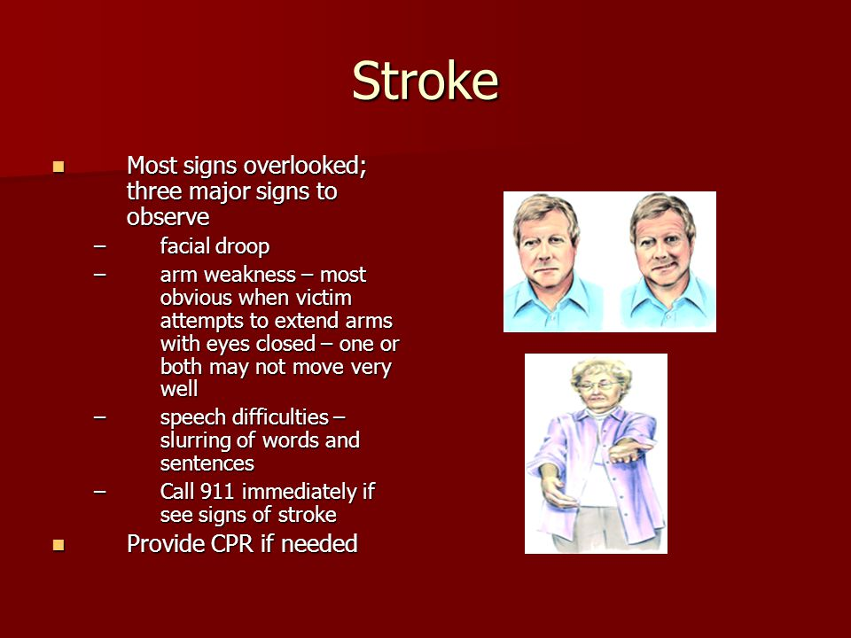 Stroke Most signs overlooked; three major signs to observe