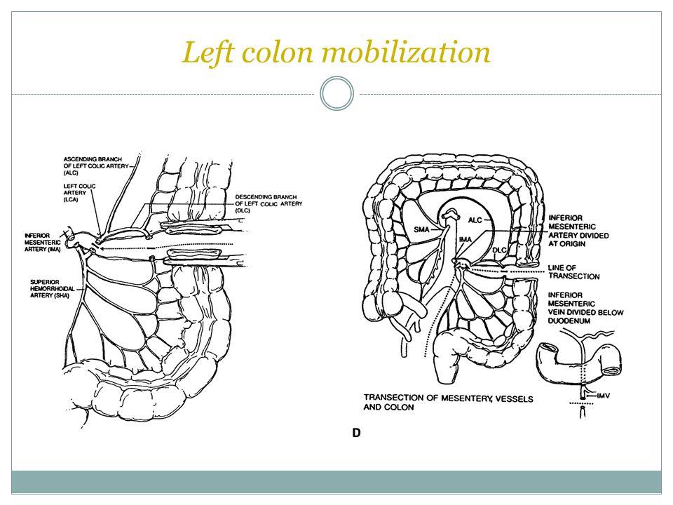 Left colon mobilization