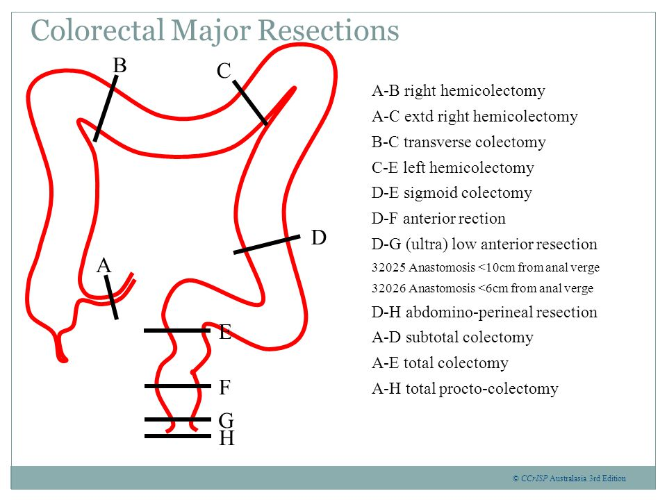 Colorectal Major Resections