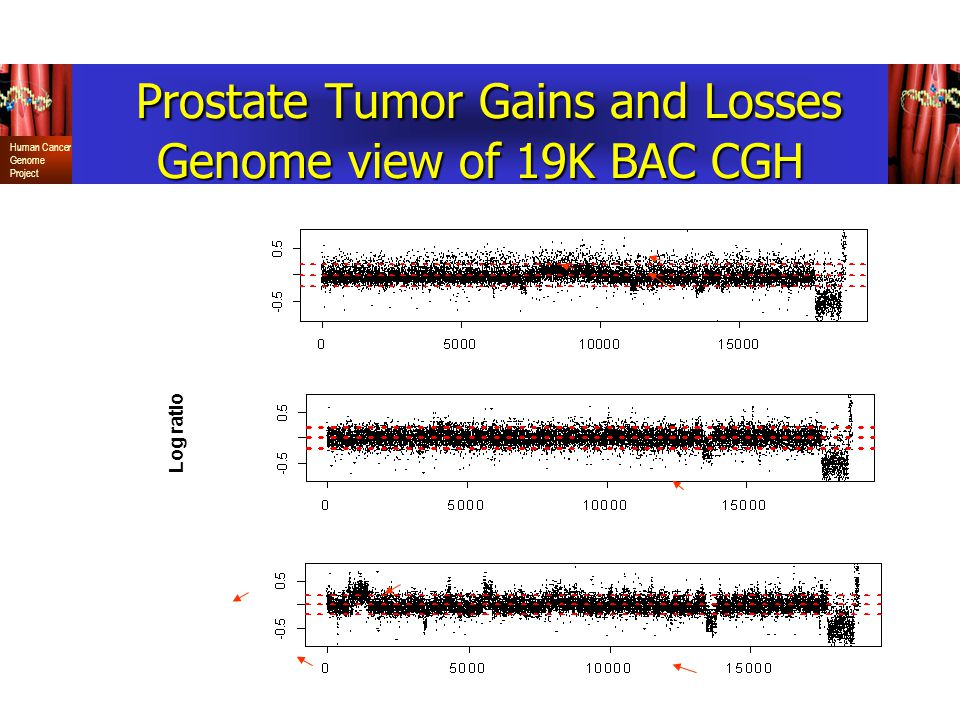 Prostate Tumor Gains and Losses Genome view of 19K BAC CGH
