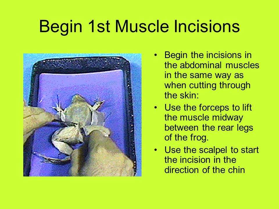 Begin 1st Muscle Incisions