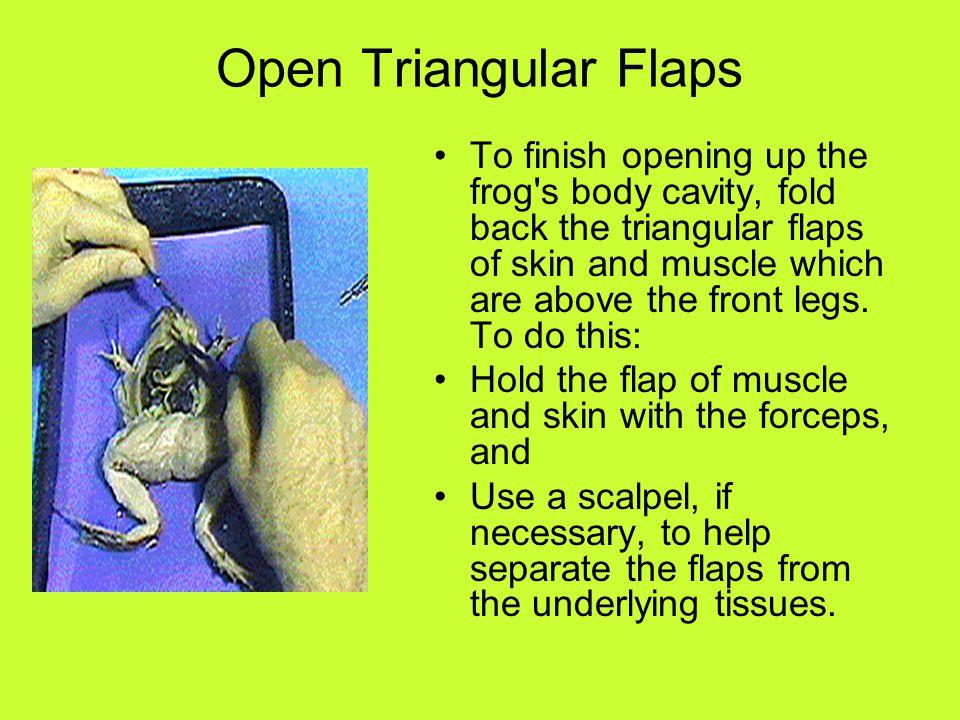 Open Triangular Flaps