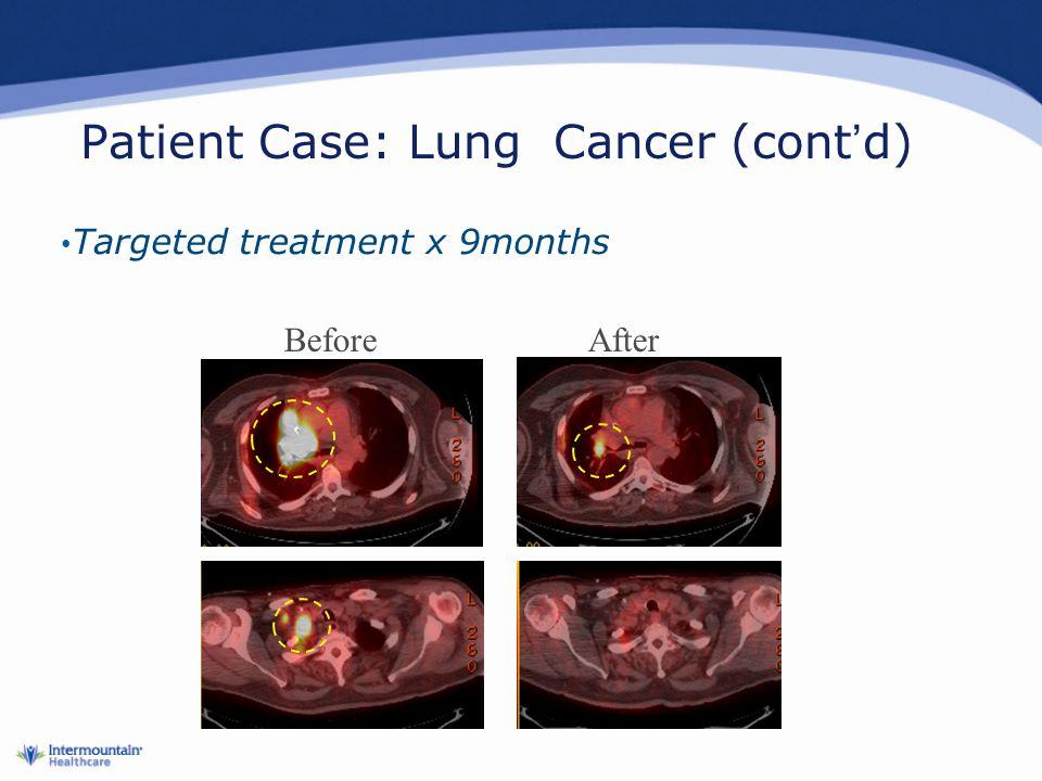 Patient Case: Lung Cancer (cont'd)