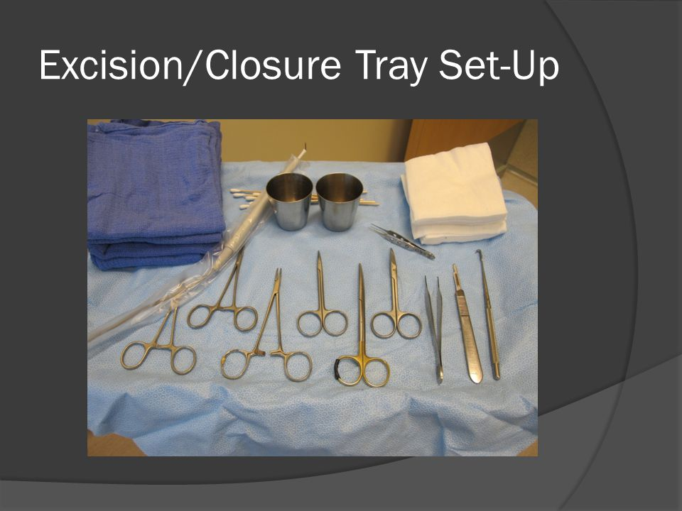 Excision/Closure Tray Set-Up