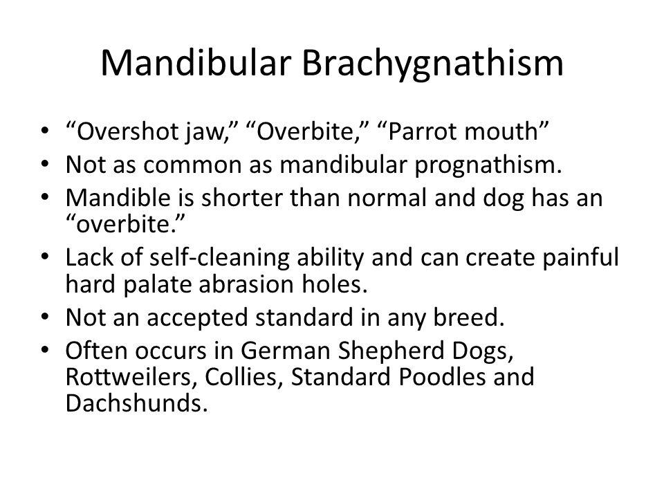 Mandibular Brachygnathism